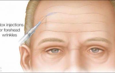 ilustración médica de inyecciones de bótox en arrugas de la frente
