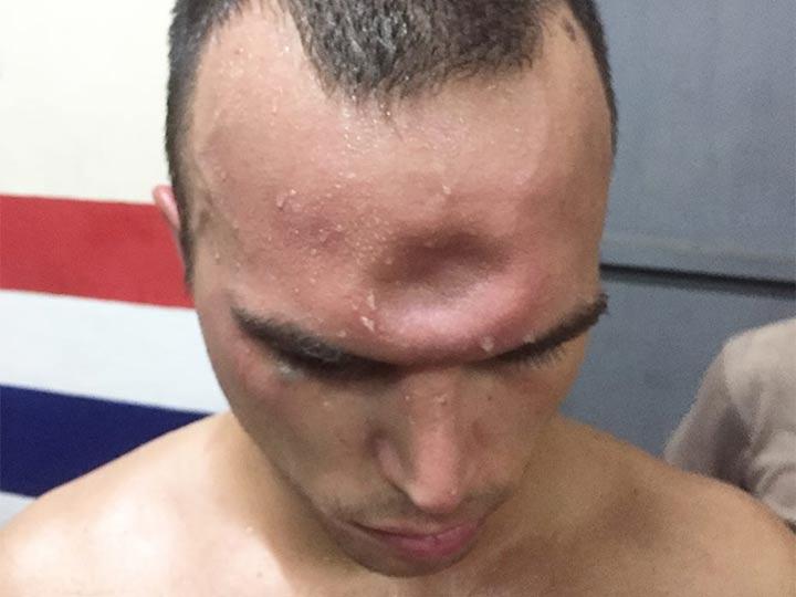 Escalofriante: mirá cómo recibió un violento codazo que le hundió la frente